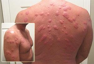 Аллергия на укусы