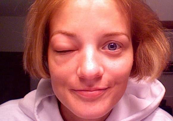 Опухоль от укуса возле глаза