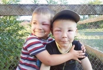 мальчики после битвы с осами