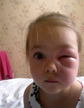 девочку укусила оса около глаза