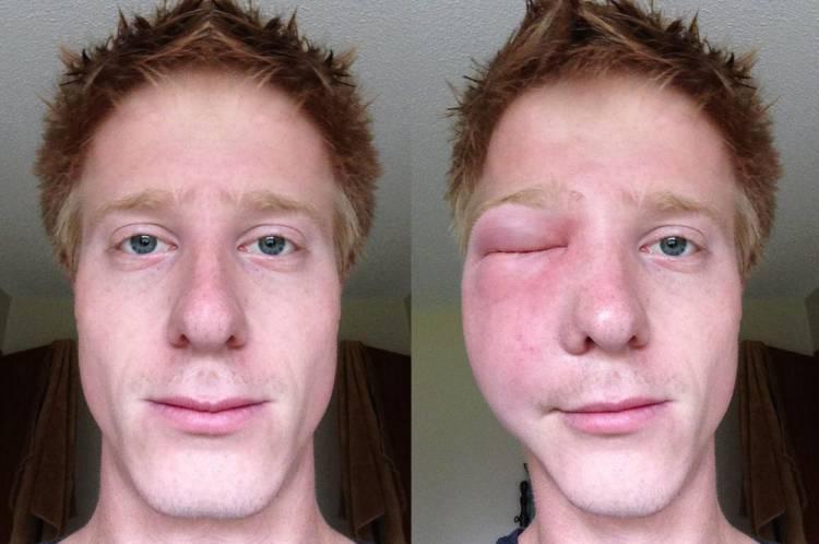 из-за укуса пчелы опух глаз