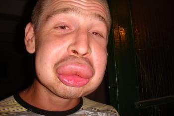 распухшие губы от укуса осы