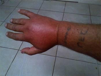 шершень укусил в руку
