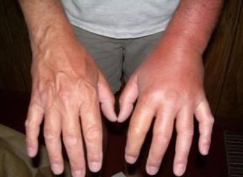 опухшая рука